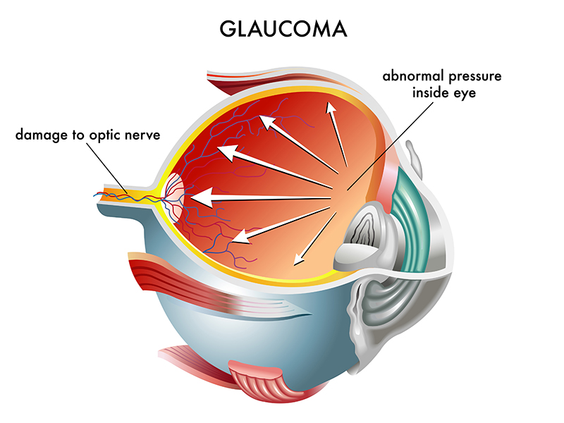 Glaucoma can damage the eye's optic nerve, which slowly impairs vision